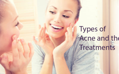 Types of Acne treatments